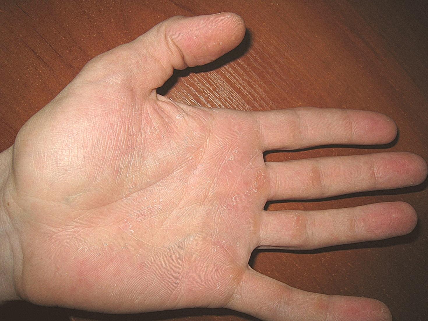 Как лечить палец на ноге от вросшего ногтя